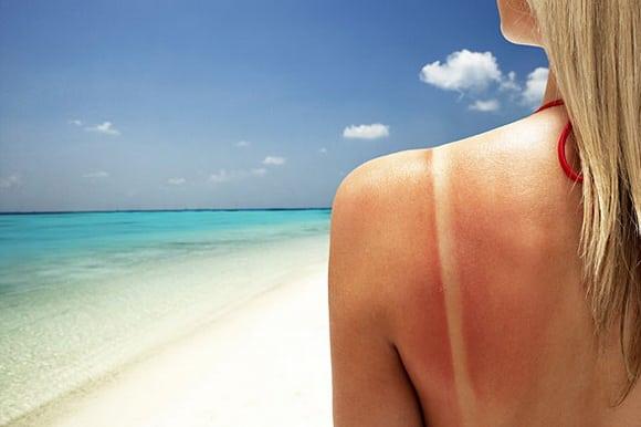 woman-with-sun-burn-http_www_aisledash_com